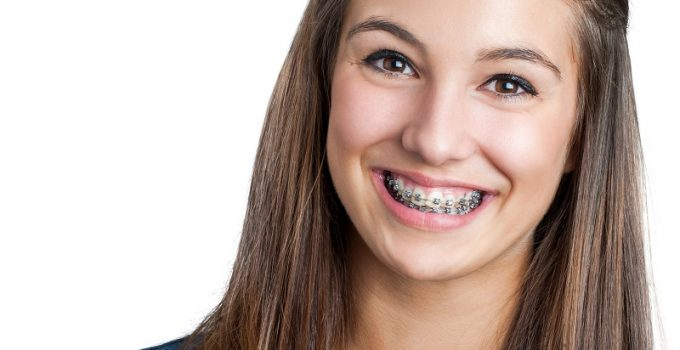 How Long Will You Be in Braces?